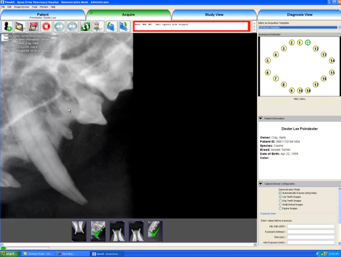 Dicom Software Acquire Screen Example with x-rays