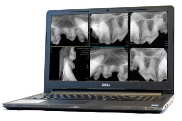 flex digital x ray camera with laptop